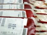 blood4630 153x115 - Una rassegna esaustiva sui metodi di inattivazione dei patogeni