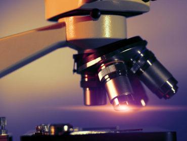 ING 18990 00356 370x280 - Lo stato dell'arte sulla rimozione delle proteine prioniche in SD-FFP, con il ricorso alla cromatografia con affinità specifica per i prioni ed il suo impatto sulle caratteristiche emostatiche del prodotto.