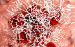 coagulazione Haemosafety 153x97 - Progressi nel trattamento dei disordini congeniti della coagulazione