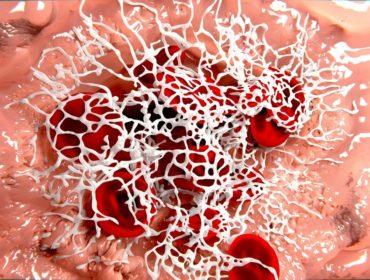 coagulazione Haemosafety 370x280 - Progressi nel trattamento dei disordini congeniti della coagulazione