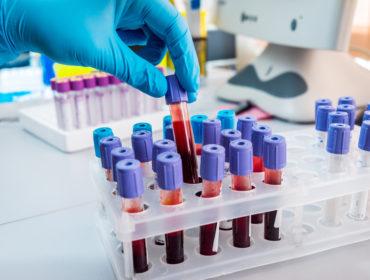 shutterstock 327930536 370x280 - Trasfusioni infette: lo Stato dovrà risarcire 371 cittadini.