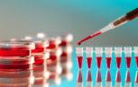 03D62923 153x97 - Effetto sul prolungamento dell'emivita plasmatica e sull'efficacia in vivo nella molecola di fattore VIII dovuto alla sostituzione dell'amminoacido Asp519 e Glu665 con Val