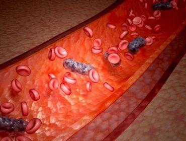 complicanze settiche trasfusione 370x280 - Complicanze settiche della trasfusione