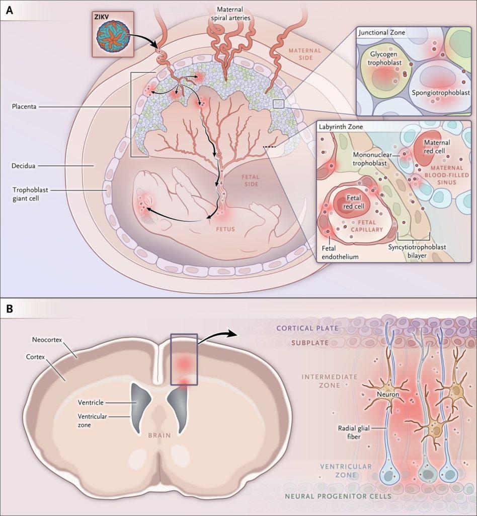 Figura 1. Siti cellulari d'infezione da Zika virus (ZIKV) in gravidanza. La placenta murina comprende componenti di derivazione materna e fetale, includendo le zone 'giunzionale' e del 'labirinto' (pannello A). Lo ZIKV può infettare trofoblasti placentari, comprese le cellule giganti trofoblastiche, il glicogeno trofoblastico, gli spongiotrofoblasti nella zona giunzionale, le cellule mononucleate trofoblastiche, i sinusoidi materni e le cellule endoteliali fetali che circondano i capillari fetali nella zona del labirinto (inserto). Lo ZIKV infetta il cervello fetale murino con tropismo per le cellule della corteccia cerebrale e della zona ventricolare, includendo le cellule progenitrici neurali corticali e le cellule gliali radiali (pannello B).