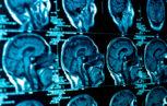 shutterstock 109083881 153x97 - La trasmissione di malattie neurodegenerative attraverso la trasfusione di sangue: uno studio di coorte.