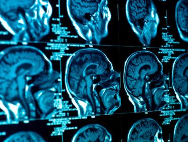 shutterstock 109083881 370x280 - La trasmissione di malattie neurodegenerative attraverso la trasfusione di sangue: uno studio di coorte.