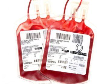 blood bag 370x280 - Il rischio di infezione post-trasfusione da Cytomegalovirus
