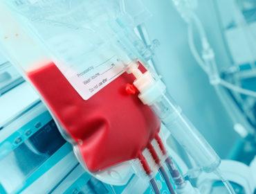 trasfusioni sorveglianza 370x280 - Infezione da epatite B occulta e rischio di trasmissione mediante trasfusione