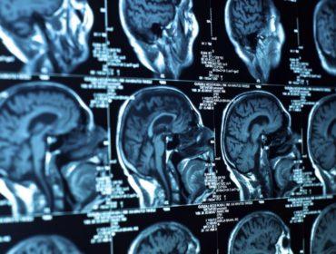 encefalite 370x280 - Il virus dell'encefalite di St. Louis può essere trasmesso attraverso trasfusioni di sangue. Arizona, 2015