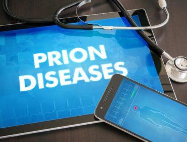 malattia da prioni 370x280 - Malattie da prioni