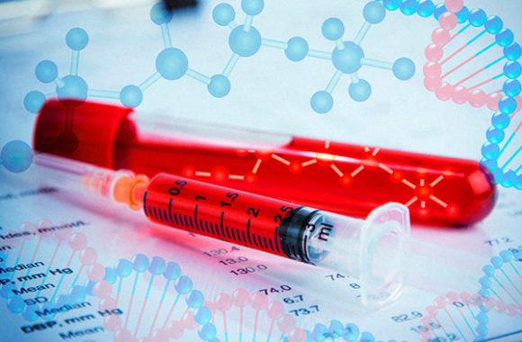 ricerca 2 580x380 - L'EMA approva l'emicizumab per la profilassi in emofilia A con inibitore