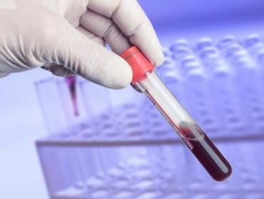 sangue 370x280 - La prevenzione delle infezioni trasfusionali trasmissibili: un dilemma
