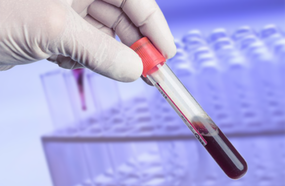 sangue 580x380 - La prevenzione delle infezioni trasfusionali trasmissibili: un dilemma