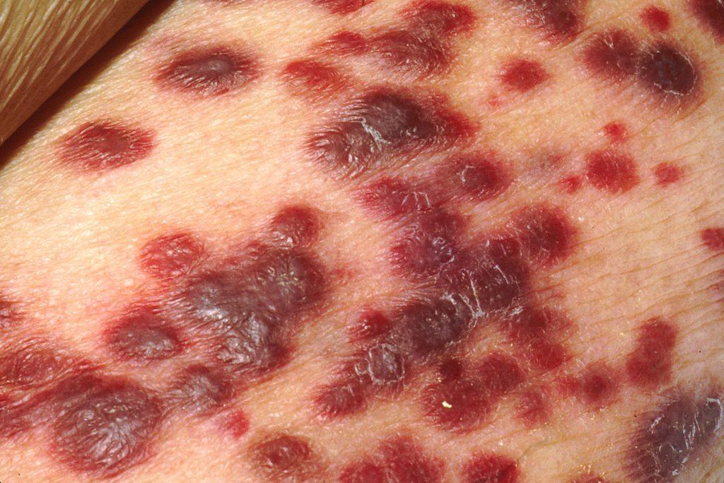 Herpesvirus 8-infezione da HIV
